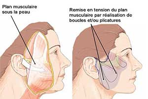 lifting cervicofacial tunisie